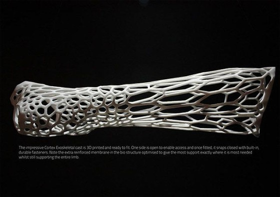 3Dプリンターで作る新しいギプス『Cortex』のコンセプトモデル2